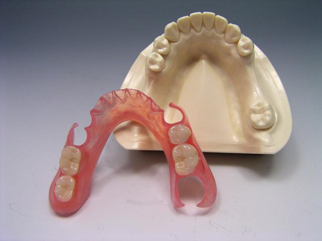 протези зъбни
