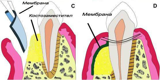 vodena-kostna-regeneracia.jpg
