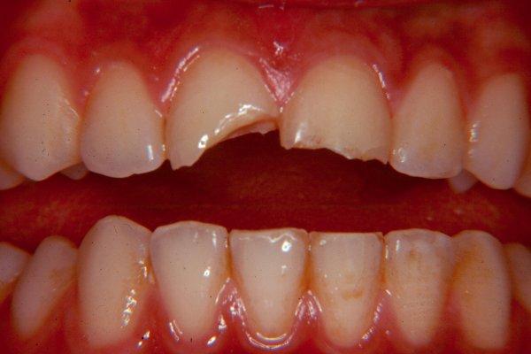 Broken tooth | Ralev Dental Clinic