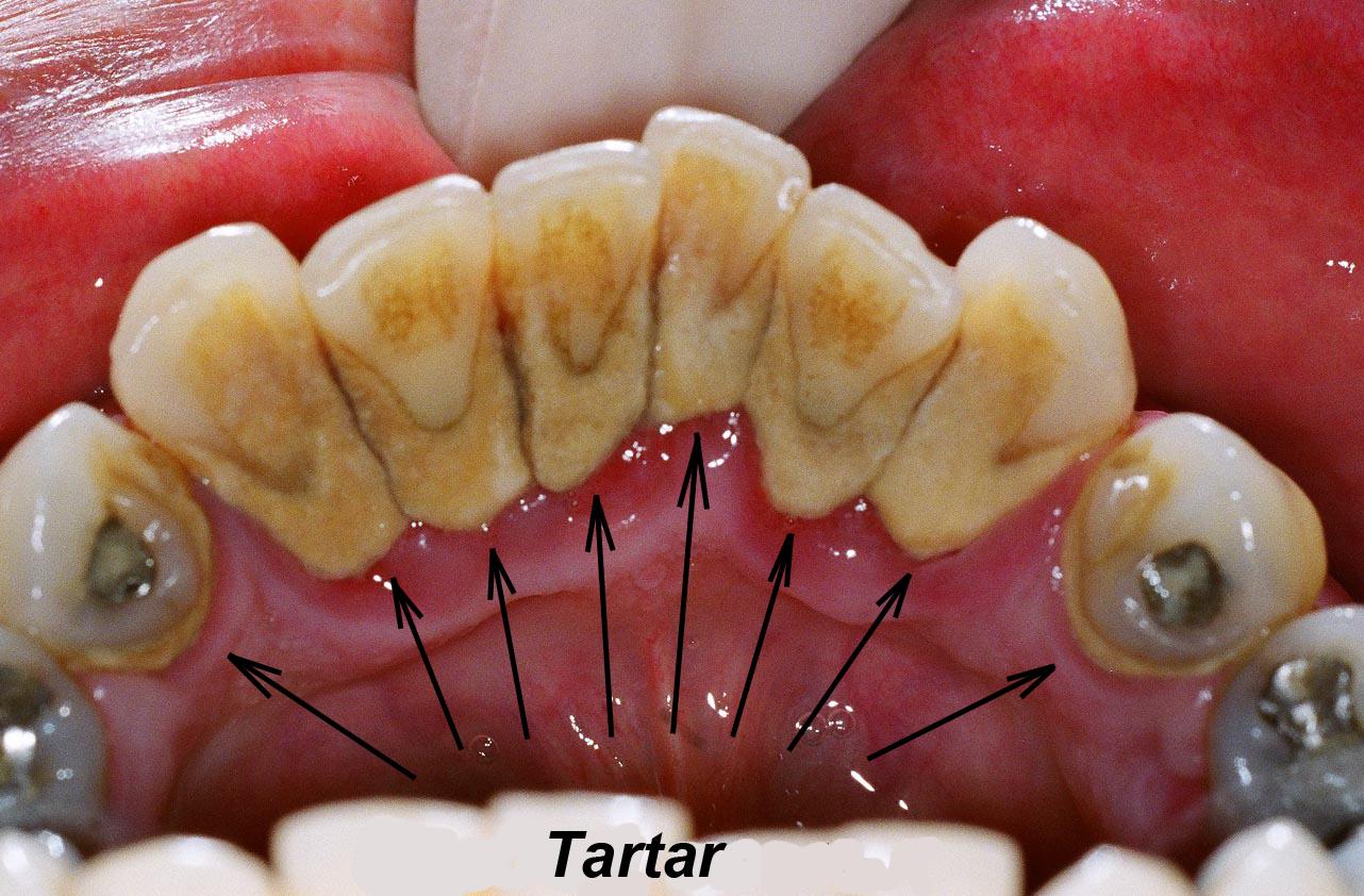 Как в домашних условиях удалить налет с зубов в домашних условиях