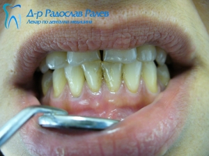 Почистване на зъбен камък 2