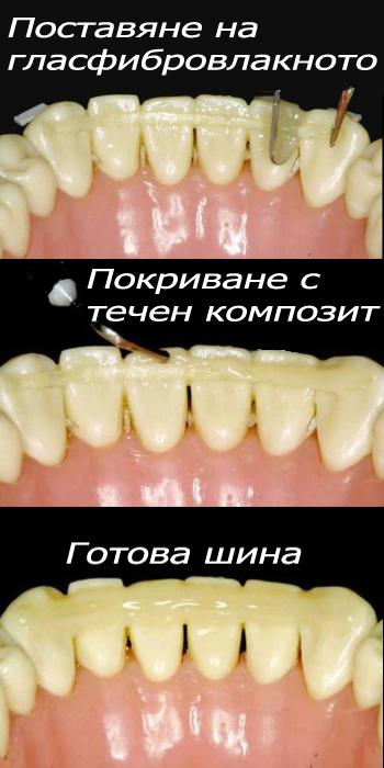Splinting of loose teeth | Ralev Dental Clinic