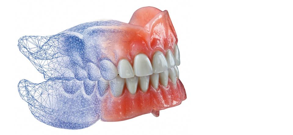 Изработване на зъбни протези