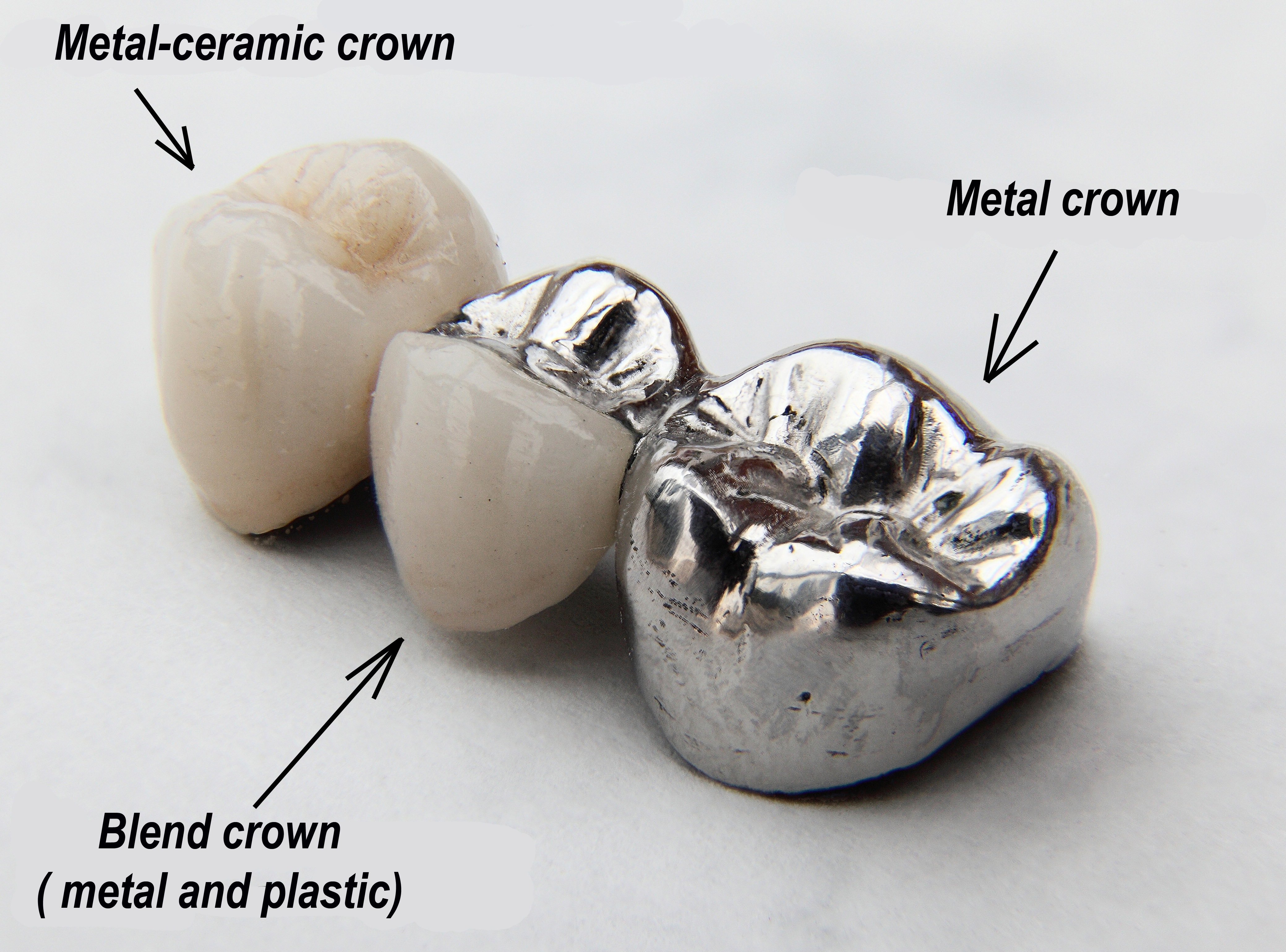 Fabrication Of Crowns And Bridges Ralev Dental Clinic