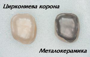 Metalokeramika cirkonii