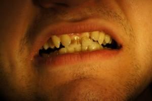 Почистване на зъбен камък 3